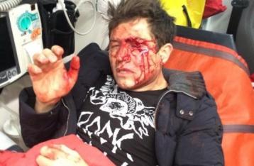 В Киеве неизвестные избили Андрея Джеджулу